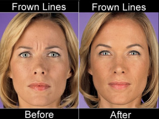 <center>Safe, Effective Botox and Filler Treatments</center>