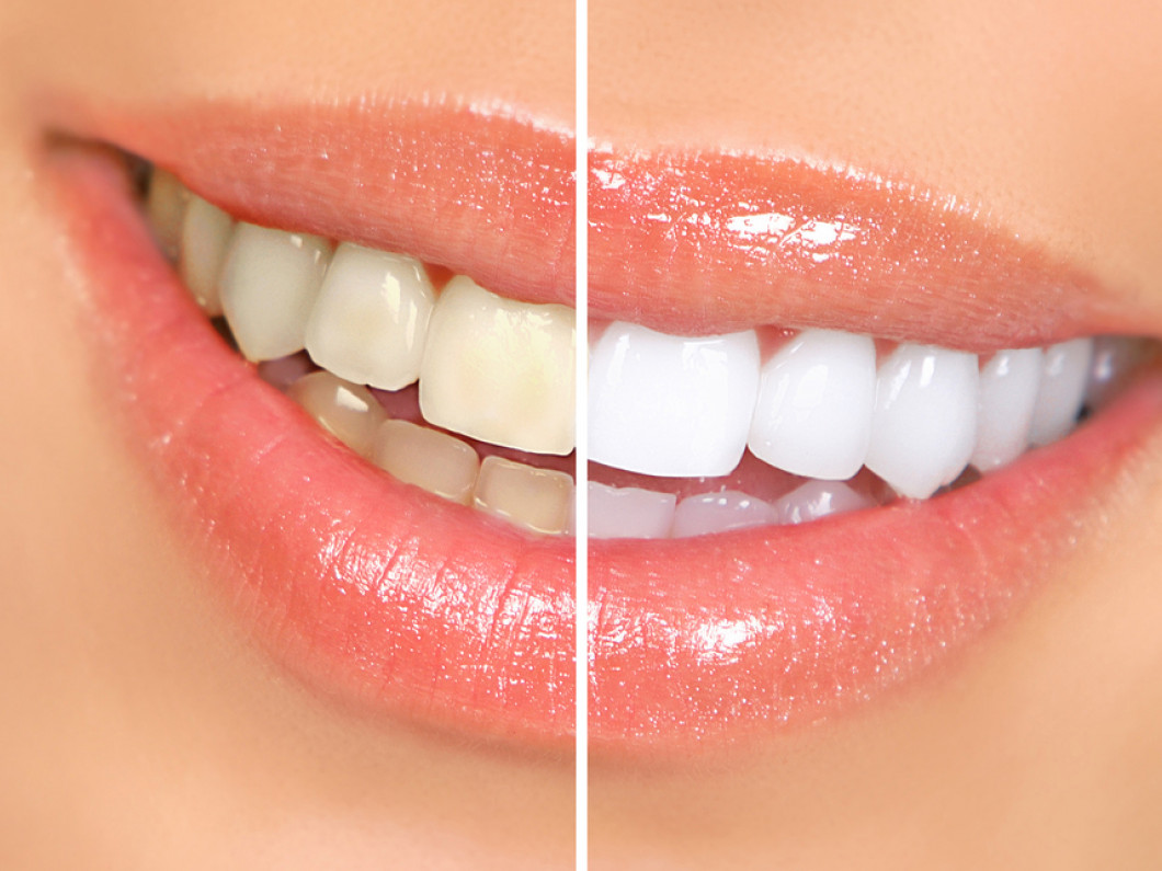 Cosmetic Dental and Botox Services